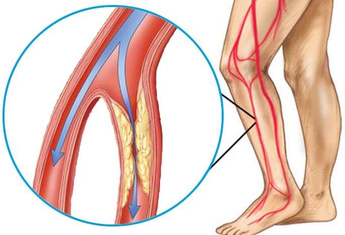 gel analgezic și antiinflamator pentru articulații Tratamentul articulațiilor Balat