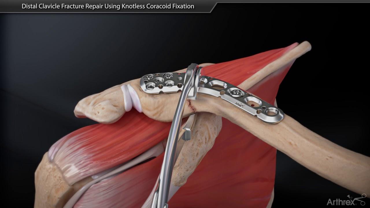 fractură închisă a tratamentului articulației umărului cu durere severă în articulația genunchiului