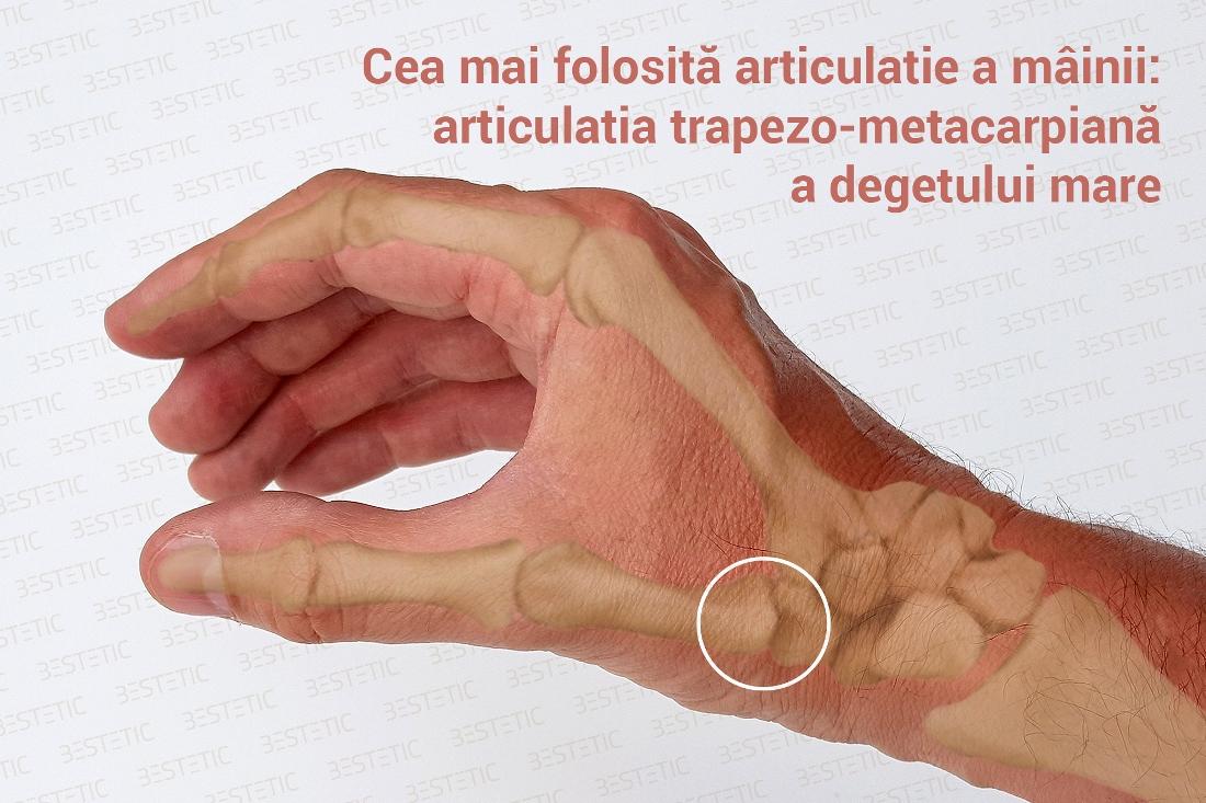 Dureri ale articulatiei mainii stangi, Artrita mâinii stângi