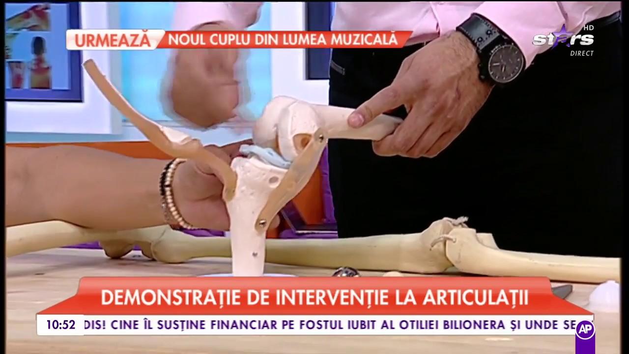 probleme articulare articulația brațului drept doare