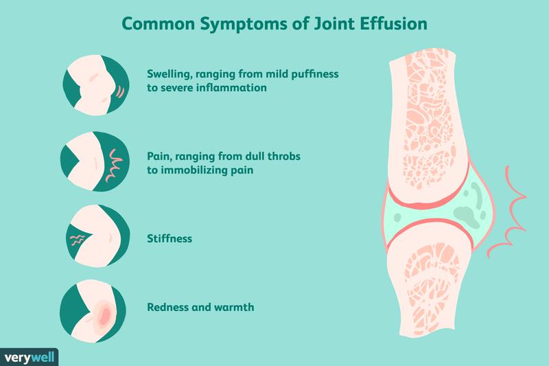 Totul despre artrita genunchiului - Simptome, tipuri, tratament | avagardens.ro