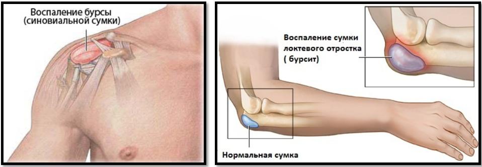 Cum să încălziți articulațiile cu artroza - avagardens.ro