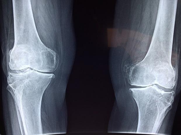 durere în timpul puncției genunchiului consolida articulațiile medicamente steroizi