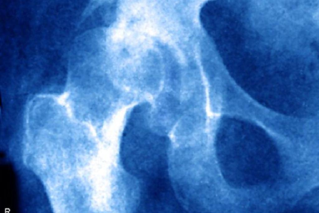 Cum se tratează subluxația șoldului la adulți - Stadiile osteochondrozei genunchiului