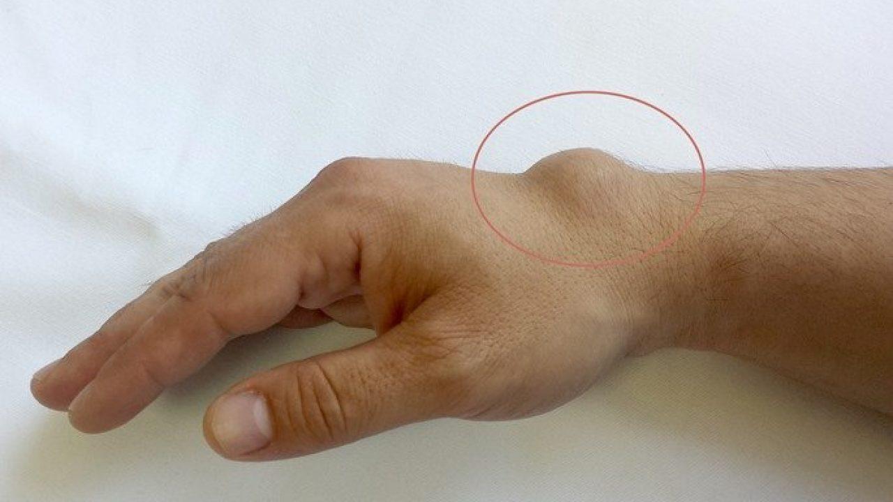 cum să tratezi articulațiile la încheietura mâinii