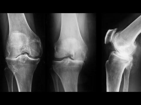 Articulații spinale cu semne de artroză
