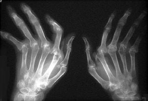 Plante medicinale pentru tratamentul artritei. artroza
