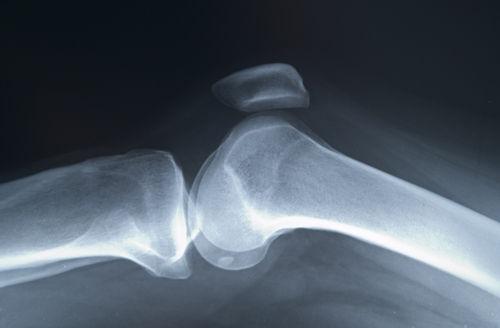 Osteoporoza – cauze, simptome, metode de diagnostic și tratament