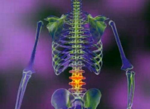 tratamentul articular al coloanei vertebrale când articulațiile doare ce să bea