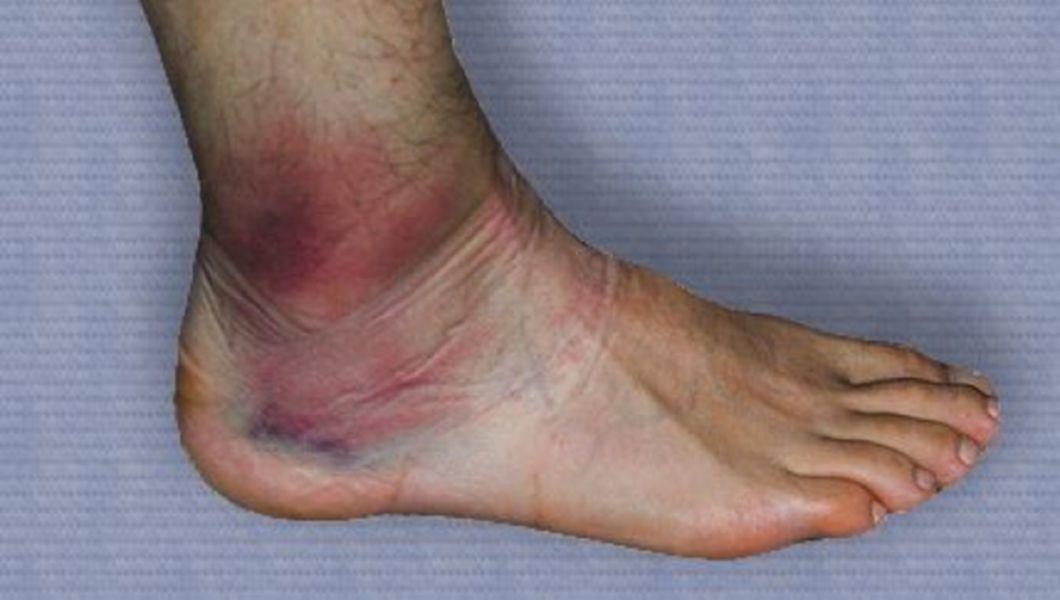 Durere atunci când mergeți în articulațiile gleznei, Artroza – ce este, tratament si simptome