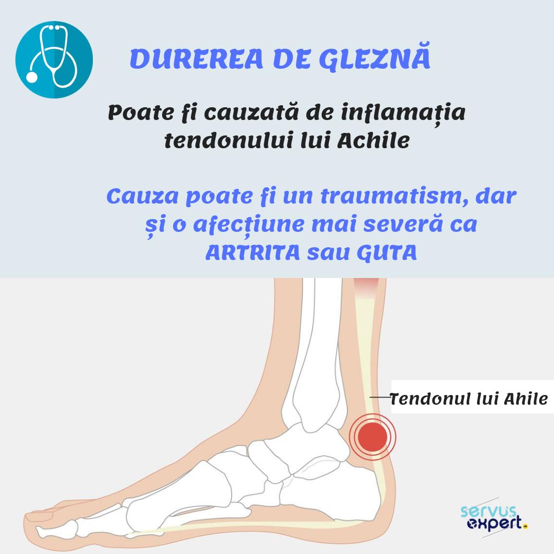 artroza de gradul II a articulației șoldului cum să tratezi artrita alergică