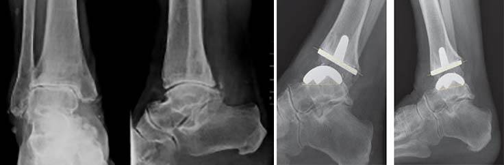 tratament pentru artroza gleznei a fost accidentat la genunchi