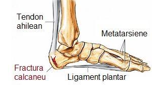 Tratament după fracturi ale articulației gleznei - avagardens.ro