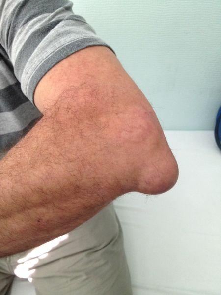 Tratamentul lichidului la cotul brațului