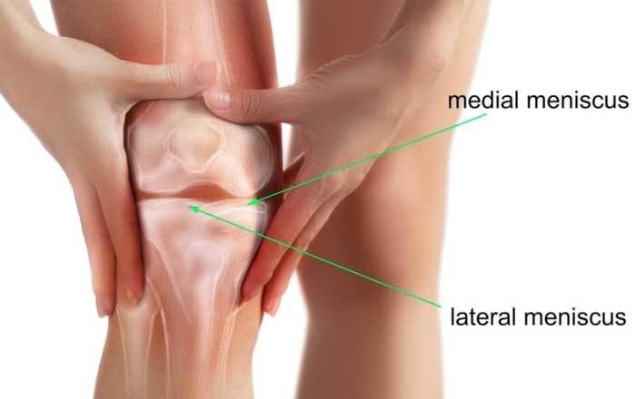 semne de deteriorare a meniscului genunchiului