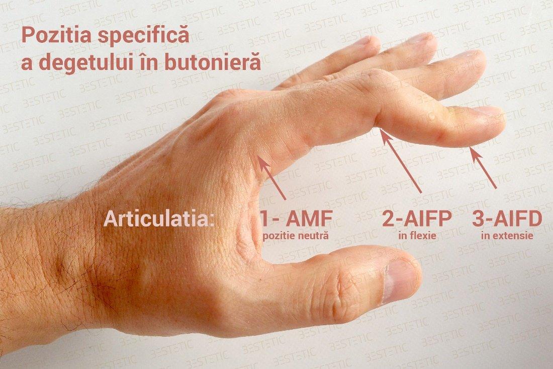 Care îmi determină să se umfle degetul mare și cum îl tratez?