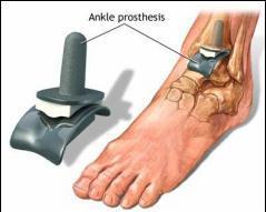 cum să scapi de artrita articulației gleznei