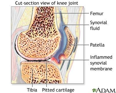 sinovita sau inflamarea membranei articulare cel mai bun unguent pentru mușchi și articulații