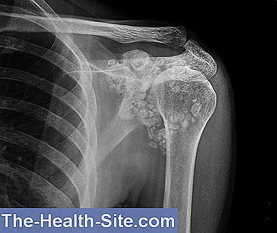 Dureri de calic la nivelul articulației genunchiului. Dureri articulare brusture