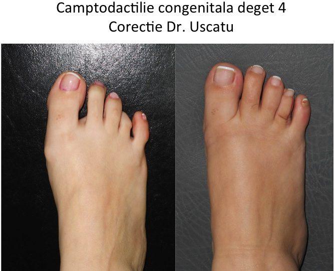 artrita fractura de deget de la picior toate articulațiile și țesuturile doare