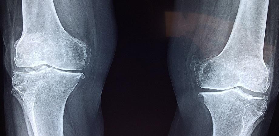 Fracturile rotulei – diagnostic și tratament, Tratamentul unei fracturi a rotilei