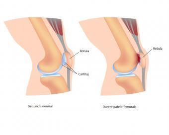 Dureri de genunchi de la pedalat