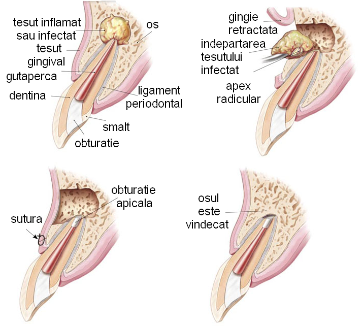 durere în fesa stângului care dă articulației