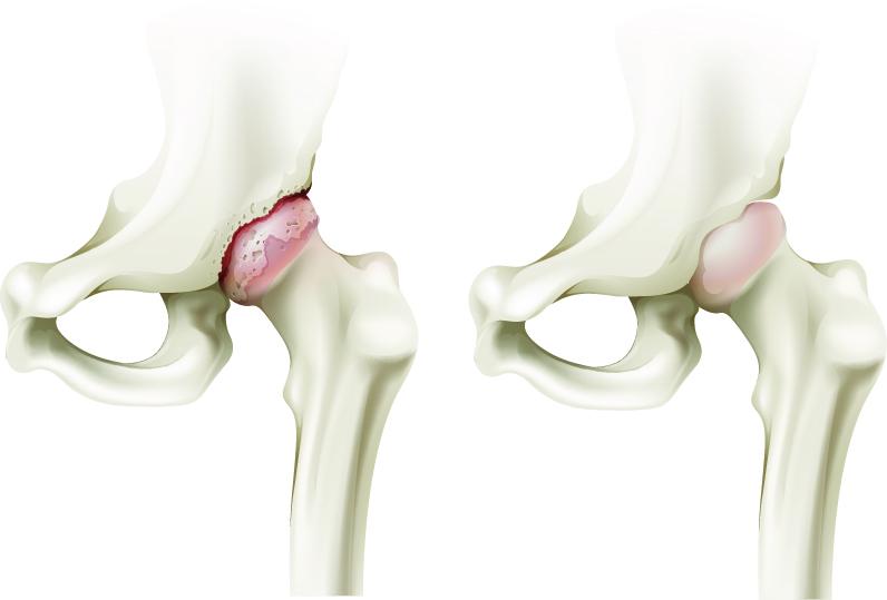 articulațiile doare după severe dureri de șold la săptămâna 16