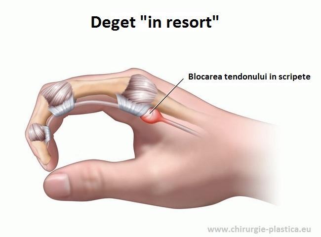 degetul mijlociu în articulație doare îndepărtați durerile de cot