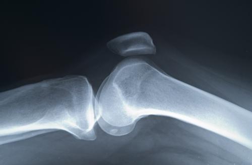 cum se tratează artrita psoriazică pe deget tratament comun cu frunze de mesteacăn