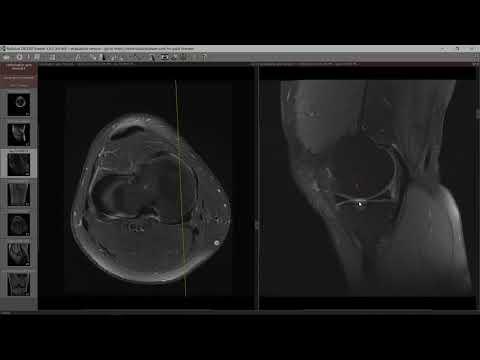 ce poate fi inflamația articulației