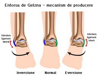 Umflarea severă a gleznei după accidentare. Injurația gleznei