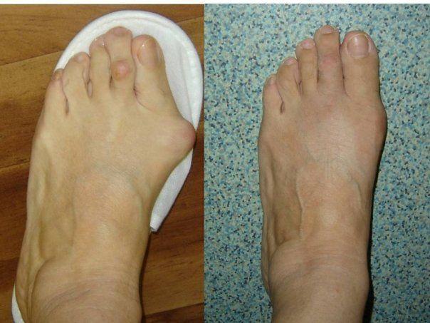 artrita femeie deget de la picior
