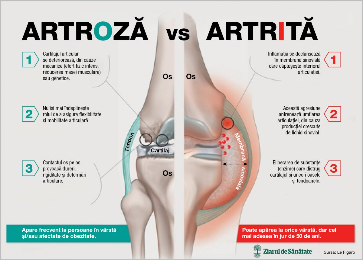 boala de genunchi sinovita unguente pentru articulațiile phuket