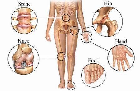 pentru dureri articulare cu artroză artroză boala articulațiilor reumatolog