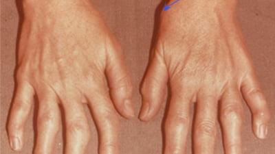 Articulație pe degetul mijlociu - avagardens.ro