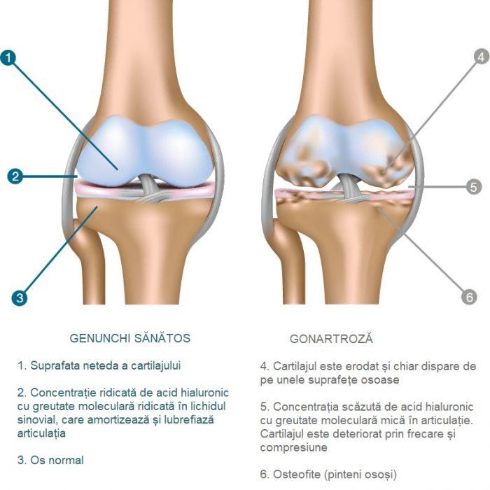 după cădere, articulația genunchiului doare boală simultană sau secvențială a mai multor articulații