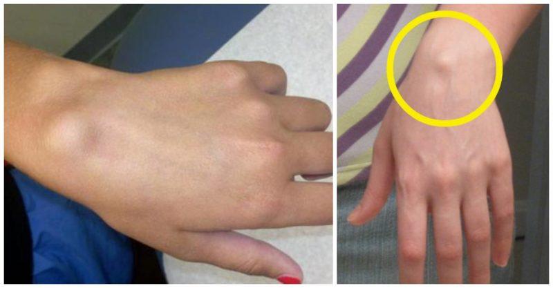 cum să îndepărtați umflarea din mână cu artrită