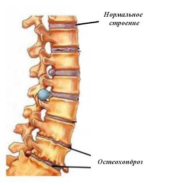 durerile articulare după efort unguente și geluri pentru artrita articulației gleznei