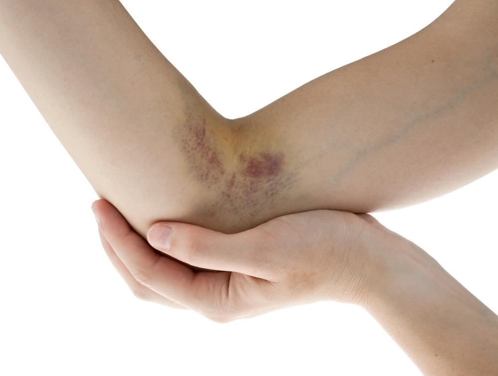 O articulație poate răni din cauza unei vânătăi, Свежие комментарии