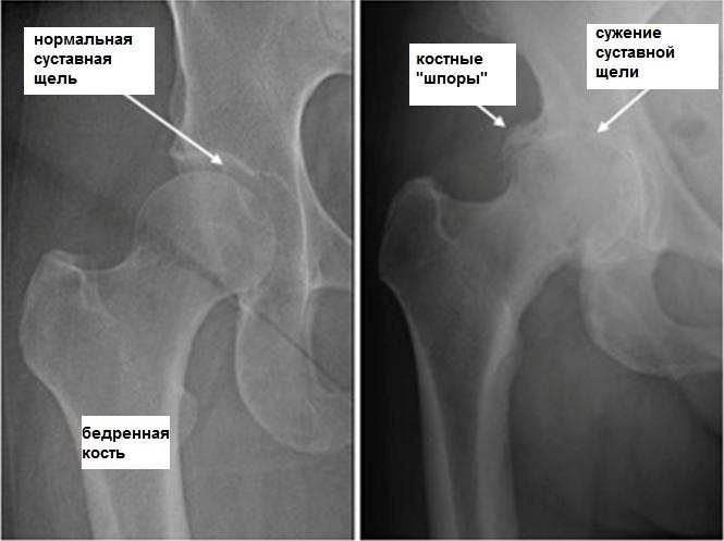 cum să tratezi genunchii cu artroză dureri de șold cum să ușurezi