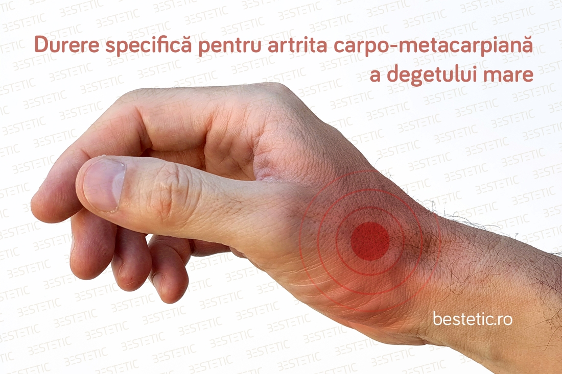 artroza artrita gleznei