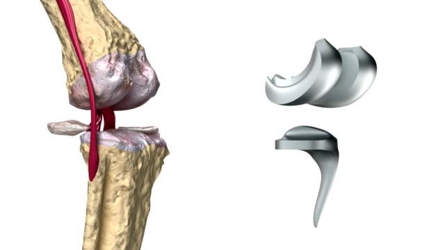 Preparate Dikul pentru tratamentul articulațiilor - Genunchi , Balsam articular ligamentar