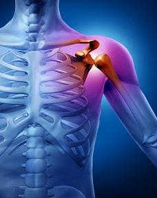 durerea radiază până la articulația umărului artroza genunchiului pentru tratarea mierii