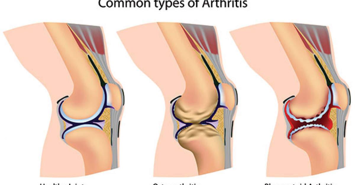 Tratamentul mobilității limitate a genunchiului, Instabilitatea ligamentelor genunchiului