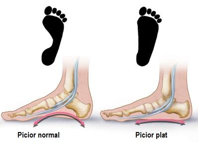 durere în articulația exterioară a piciorului