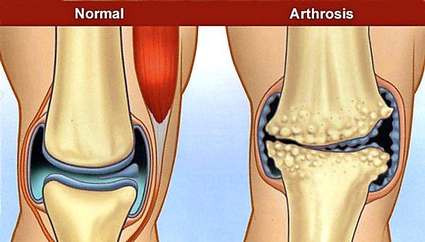 artroza de gradul doi al articulațiilor șoldului