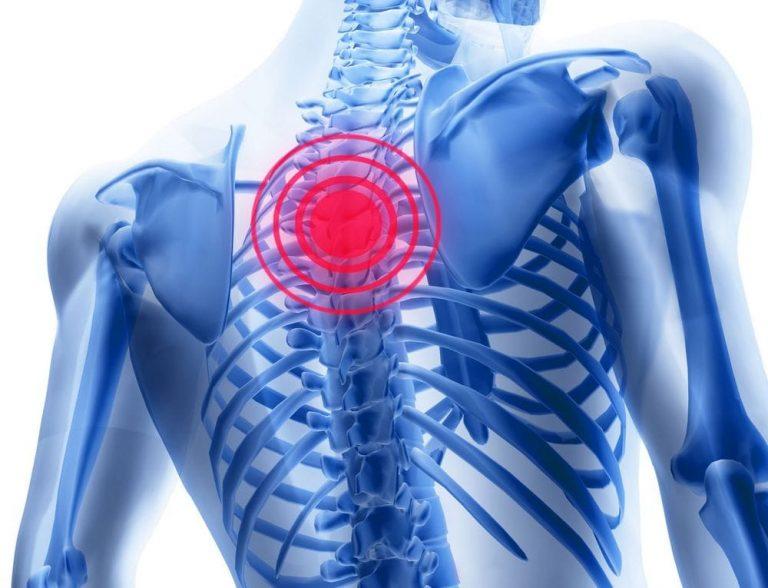 Cauzele osteocondrozei - Manșetă