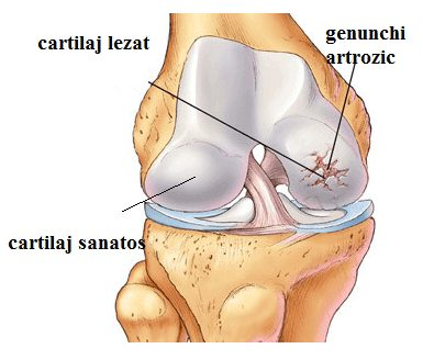 medicamente pentru gonartroza articulației genunchiului