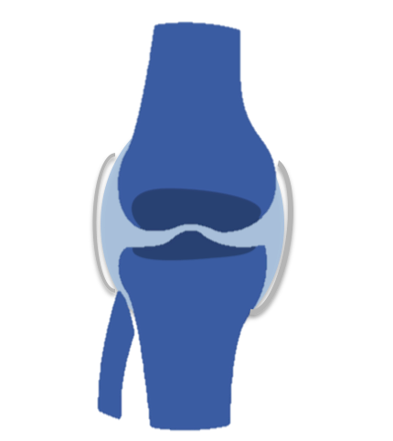 inflamație articulară pe neașteptate unguent din durerile articulare